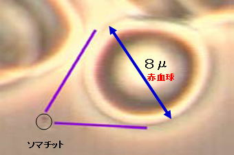 somatid_image19